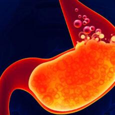 Gastrite e Reflusso, cause e rimedi